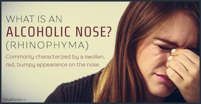 What is an Alcoholic Nose Rhinophyma